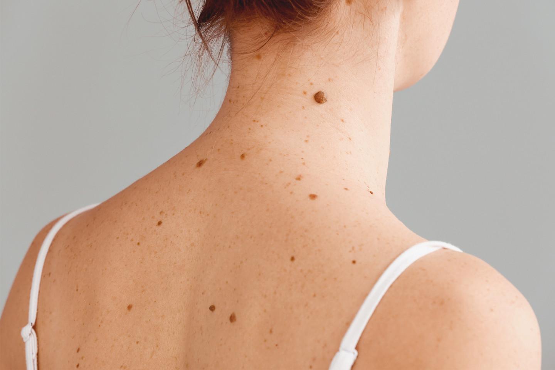 Las personas que tienen en la familia hay casos de moles atípicos o melanoma, también deben someterse regularmente a las inspecciones de la piel.