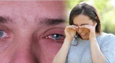 2019926195919324FO_792954925 عوامل و أسباب تؤدي إلى احمرار العينين المزيد