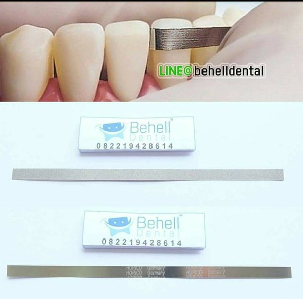 Aman Dan Terjamin - Kikir Gigi Dental Abrasive Strip Steelcarbo Strip Horico