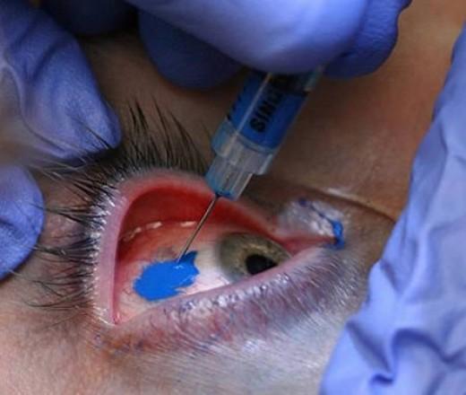 Corneal Tattooing. Eyeball TattooingOuch!