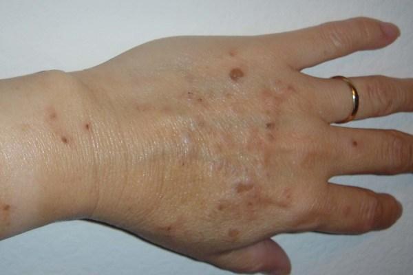 Alexandrite Laser For Treatment of Sun Damaged Skin