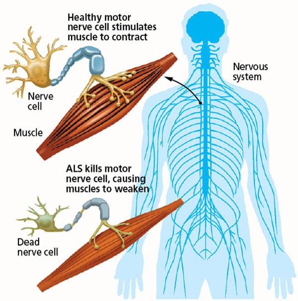 Image result for ALS