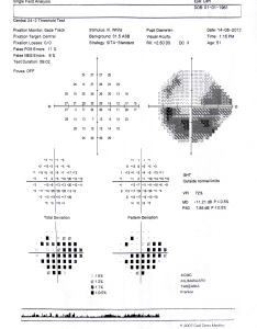 Tanzania heiko philippin figure  standard automated perimetry printout for someone with advanced primary open angle also community eye health journal visual field testing glaucoma  rh cehjournal