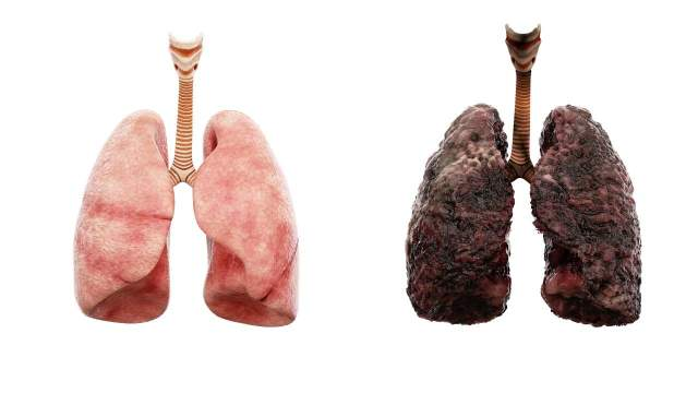 Diseased lungs are more susceptible to the virus than healthy ones. Image courtesy: NI Medical
