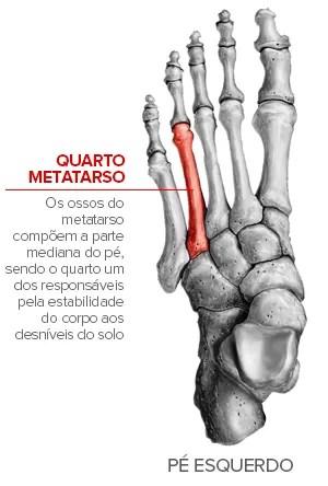 Neymar sofre lesão no pé e pode ficar fora do resto da