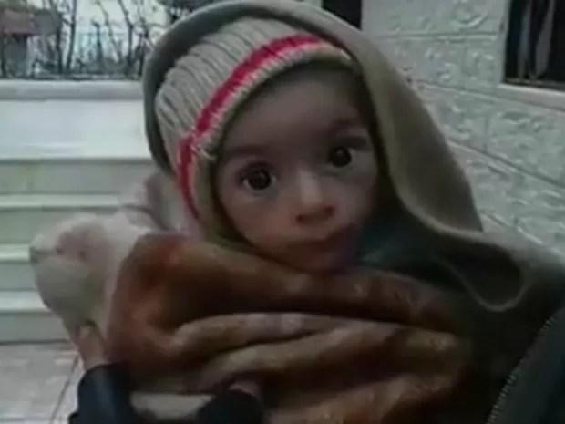 Civis, entre eles crianças, estão morrendo de fome ou são assassinados quando tentam escapar do cerco. (Foto: BBC)