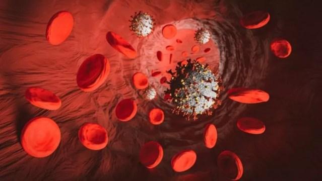 Distúrbios na circulação do sangue pelo corpo explicam em parte adoecimento por covid-19 — Foto: Getty Images/Michal-Rojek via BBC