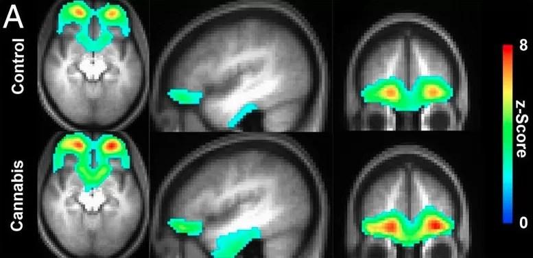 efeitos causados pela maconha (Foto: Proceedings of the National Academy of Sciences)