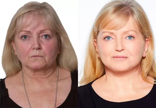 O antes e depois de Linda Nolan (Foto: Reprodução)