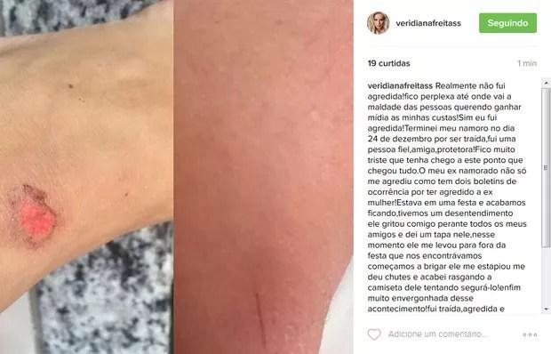 Ex-namorado de modelo nega ter cometido agressão física: 'Tudo mentira'