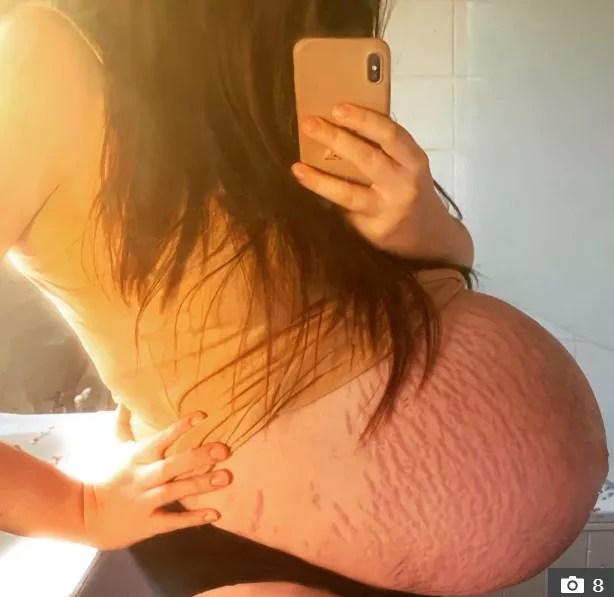 Parecia que Amber estava grávida de gêmeos (Foto: Reprodução/The Sun)