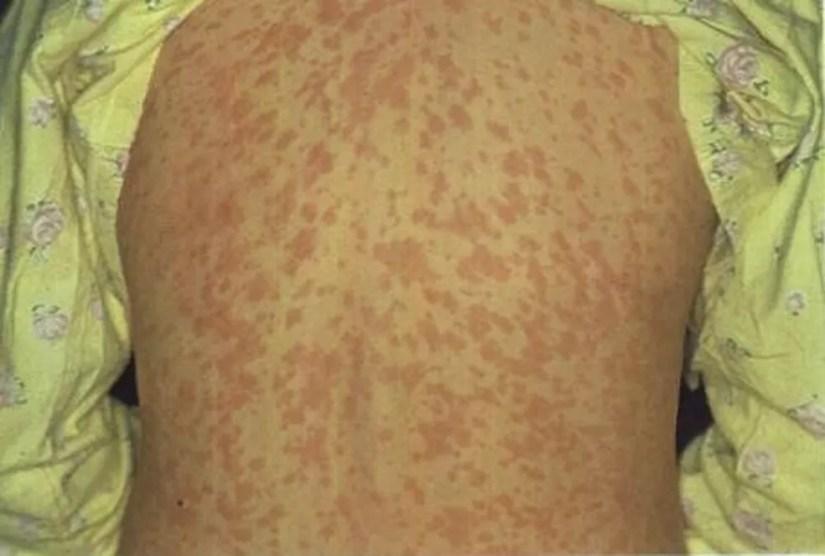 Manchas vermelhas pelo corpo podem aparecer em pessoas que contraíram sarampo — Foto: Divulgação/Sesa-ES