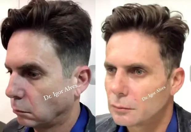 Antes e depois de Hudson Cadorini ap´pos harmonização facial (Foto: Reprodução/Twitter)