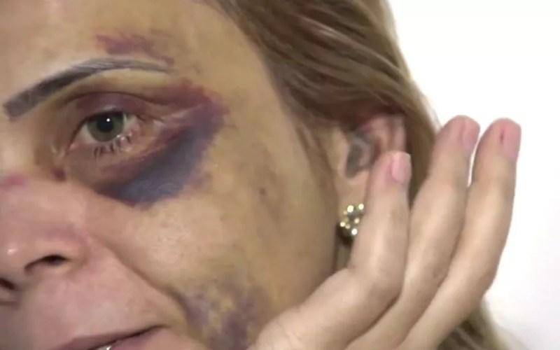 Com hematomas pelo rosto, ex-namorada do humorista Renato Fechine denuncia agressões na Bahia (Foto: Reprodução/TV Bahia)