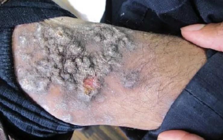 Doença de pele provocada por bactérias atingiu, ao menos, 600 detentos da Papuda, em Brasília (Foto: Sindicato dos Agentes Penitenciários/Reprodução)