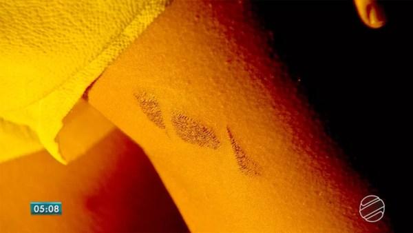 Vítima de tortura comenta agressões durante 2h30 em MS — Foto: Reprodução/TV Morena