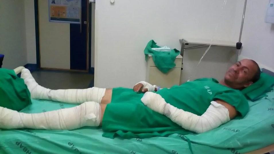 Franklin teve queimaduras nos braços e nas pernas e continua internado.  — Foto: Arquivo pessoal