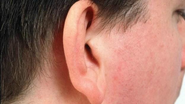 Método pode ser forma menos agressiva de corrigir malformação congênita (Foto: BBC)