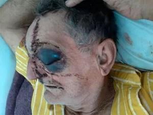Idoso de 74 anos leva 40 pontos no rosto após espancamento na Bahia (Foto: Arquivo Pessoal)