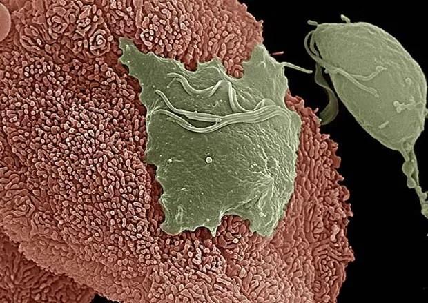 Imagem mostra parasita 'Trichomonas vaginalis' aderido a um tecido vaginal (Foto: Science/Divulgação)
