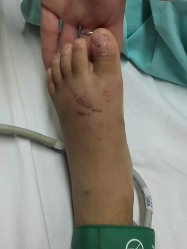 Criança tem ferimentos nos pés e teve uma das unhas arrancadas durante tortura em ritual (Foto: Divulgação/ Polícia Civil de MS/Arquivo)