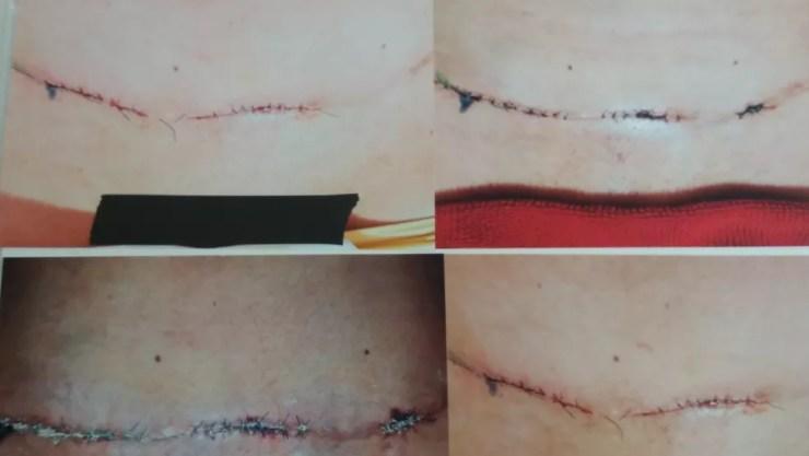 Paciente apresentou sequelas após fazer cirurgia plástica no abdômen (Foto: Jéssica Alves/G1)