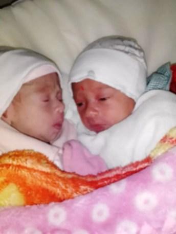 Maiara e Maraísa nasceram no dia 2 de julho em hospital de Rio Branco — Foto: Arquivo pessoal