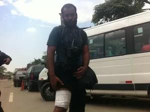 Fotógrafo do jornal O Globo, Pablo Jacob foi ferido por uma bomba de gás lacrimogêneo durante desocupação do Museu do Índio. (Foto: Isabela Marinho / G1)