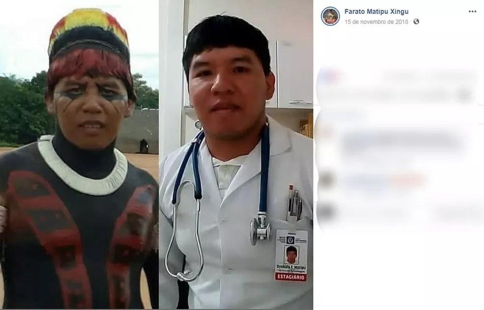Dyakalo Foratu Matipu venceu preconceitos e concluiu o curso de técnico em enfermagem. — Foto: Arquivo Pessoal