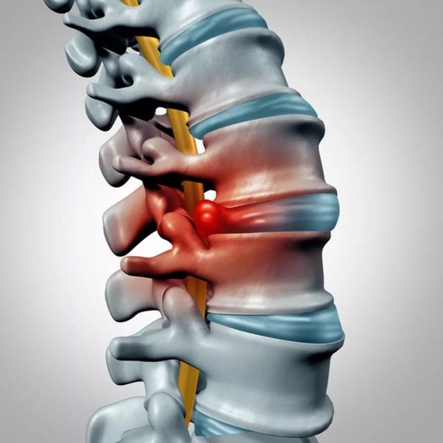 A hérnia de disco é uma lesão entre as vértebras da coluna — Foto: Istock Getty Images