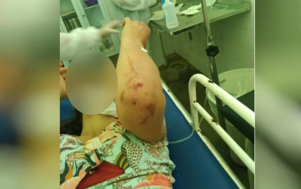 Mulher ficou com corpo cheio de hematomas após ser espancada pelo marido, em Posse, Goiás — Foto: Reprodução