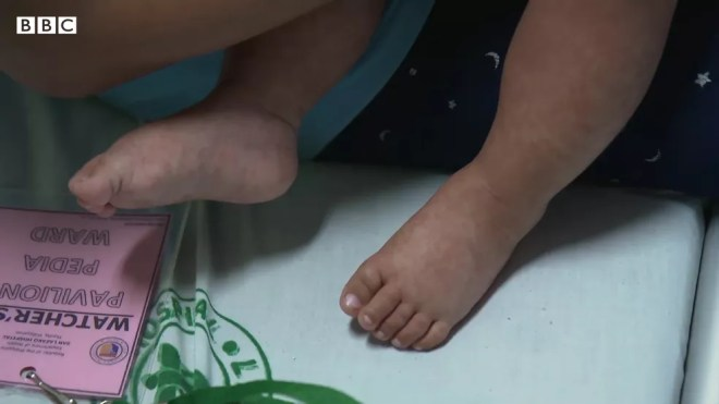 Mãe se recusou a vacinar os filhos porque temia que lhes faria mal — Foto: BBC