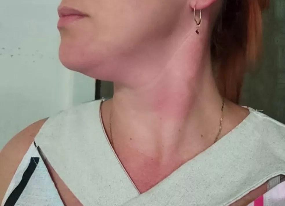 Na madrugada de 7 de junho, mulher diz ter sido enforcada pelo ex-companheiro após descobrir traição — Foto: Arquivo pessoal