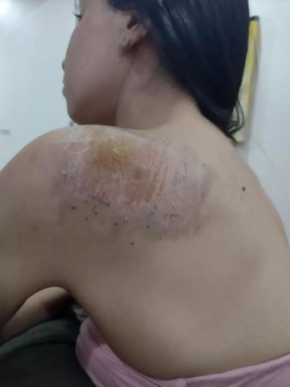 Andressa ficou com ralados pelo corpo após cair da bicicleta, em Palmas — Foto: Arquivo pessoal