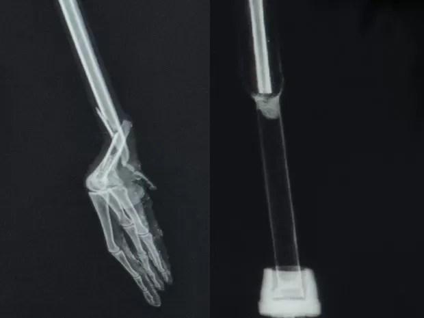 Raio-x mostra pata da ave com fratura e após amputação e colocação da prótese (Foto: Tássia Lima / G1)