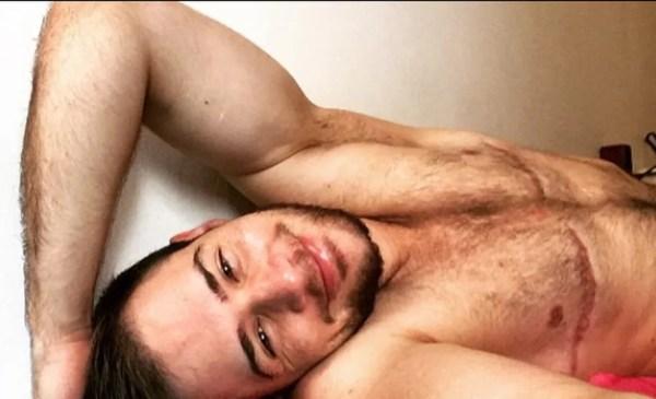 Paulo posa sem camisa em posts nas suas redes sociais. Na foto, ele exibe as cicatrizes da cirurgia de retirada de mamas (Foto: Reprodução/Instagram)