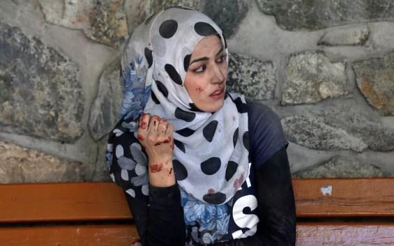 Mulher ferida em Cabul (Foto: Mohammad Ismail / Reuters)
