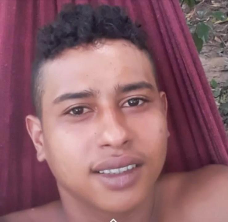 Josué Amaral deve ser transferido para um hospital especializado no atendimento em queimados — Foto: Arquivo pessoal