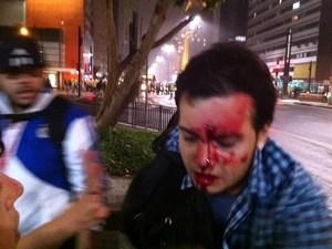 Jovem fica ferido na cabeça após tumulto na Avenida Paulista (Foto: Marcelo Mora/G1)