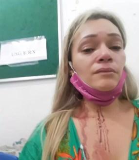 Manicure de Porto Velho denuncia lutador após ser agredida em RO — Foto: Arquivo Pessoal