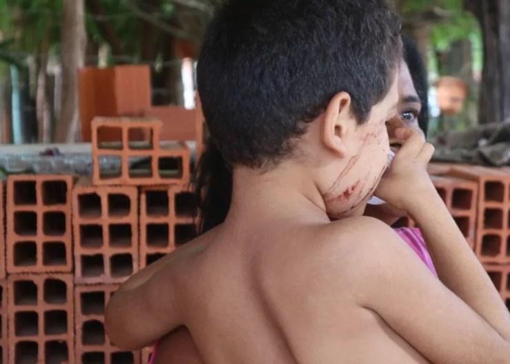 Menino de 4 anos ficou levemente ferido no desamento do quarto.  — Foto: Gilcilene Araújo/G1