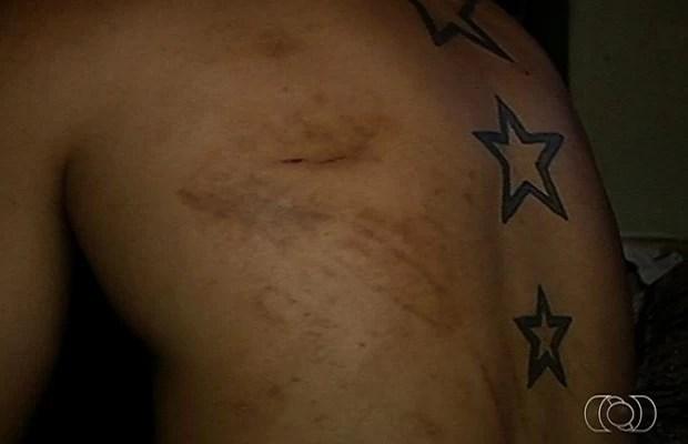 Paciente diz que foi espancado em clínica de recuperação, em Itumbiara, Goiás (Foto: Reprodução/TV Anhanguera)