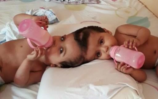 Gêmeas Siamesas unidas pela cabeça aguardam nova cirurgia em Ribeirão Preto, SP — Foto: Diego Freitas Farias/Arquivo Pessoal