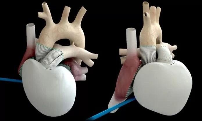 Você teria um coração totalmente artifical? (Foto: Divulgação/Carmat)