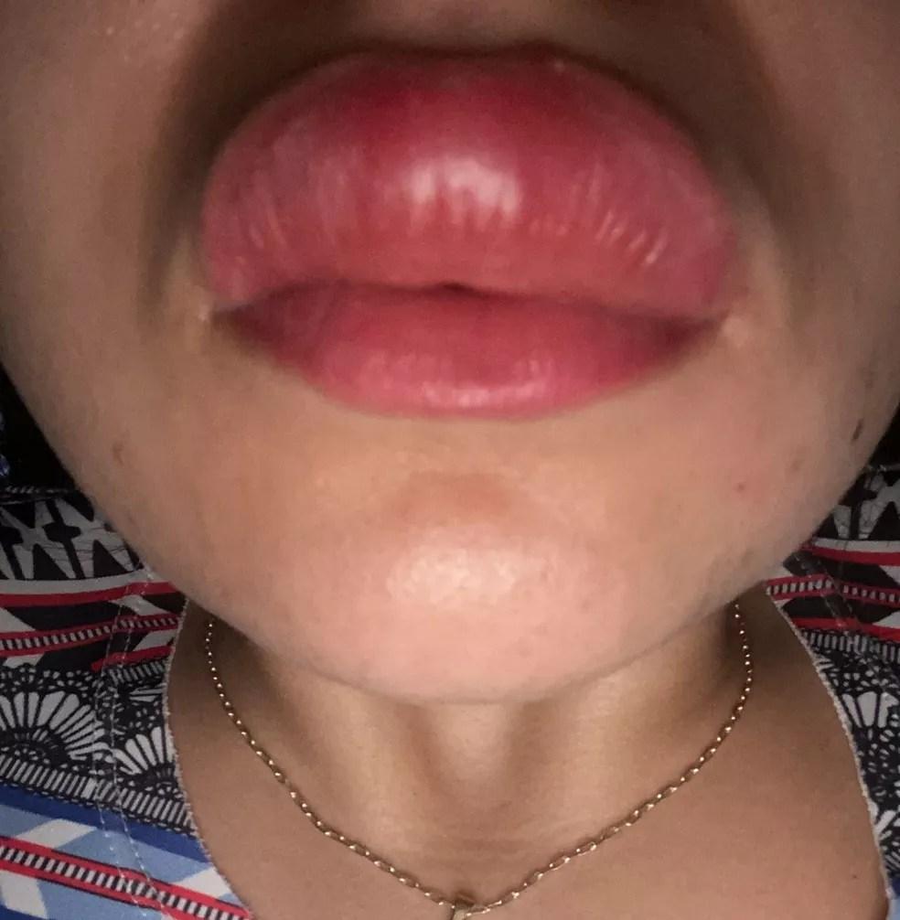 Boca de jovem ficou inchada e ela ainda está tomando medicação em casa — Foto: Arquivo Pessoal