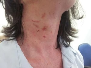 Professora foi agredida por mãe e avó de aluna (Foto: Janine Limas/RBS TV)