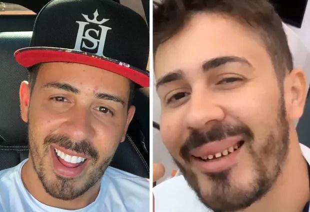 Carlinhos Maia mostra sorriso natural durante manutenção nos dentes - Quem  | QUEM News