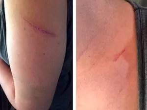 Há duas semanas ela diz que foi agredida quando saia de casa (Foto: Reprodução/RBS TV)