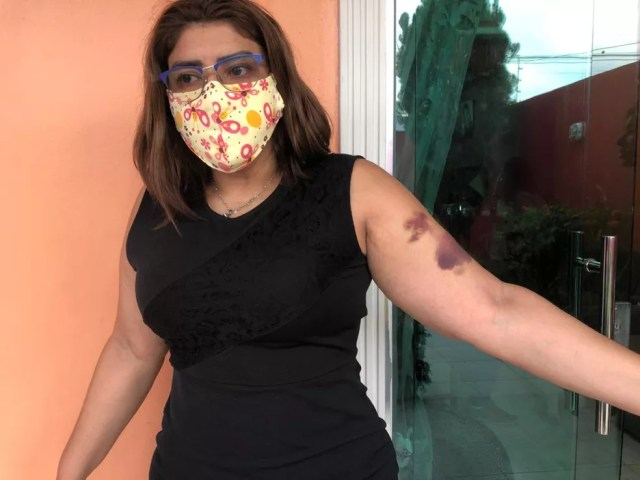 Universitária é agredida por grupo de vizinhos em Manaus após ouvir comentários racistas. — Foto: Rebeca Beatriz/G1 AM