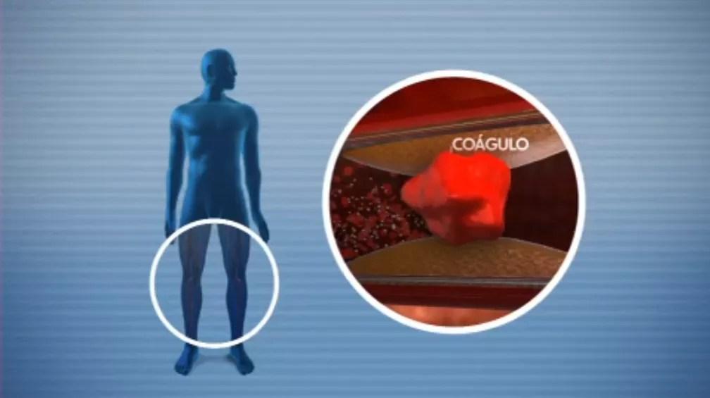 Coágulo que causa trombose  — Foto: Reprodução/TV Globo